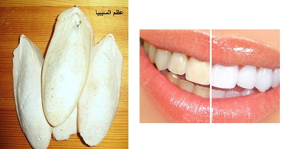 علاج اصفرار الأسنان